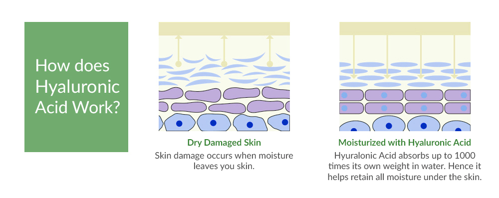 Hyaluronic acid for skin